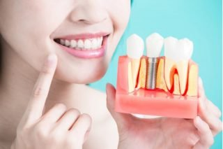 Dental Implants in Charters Towers